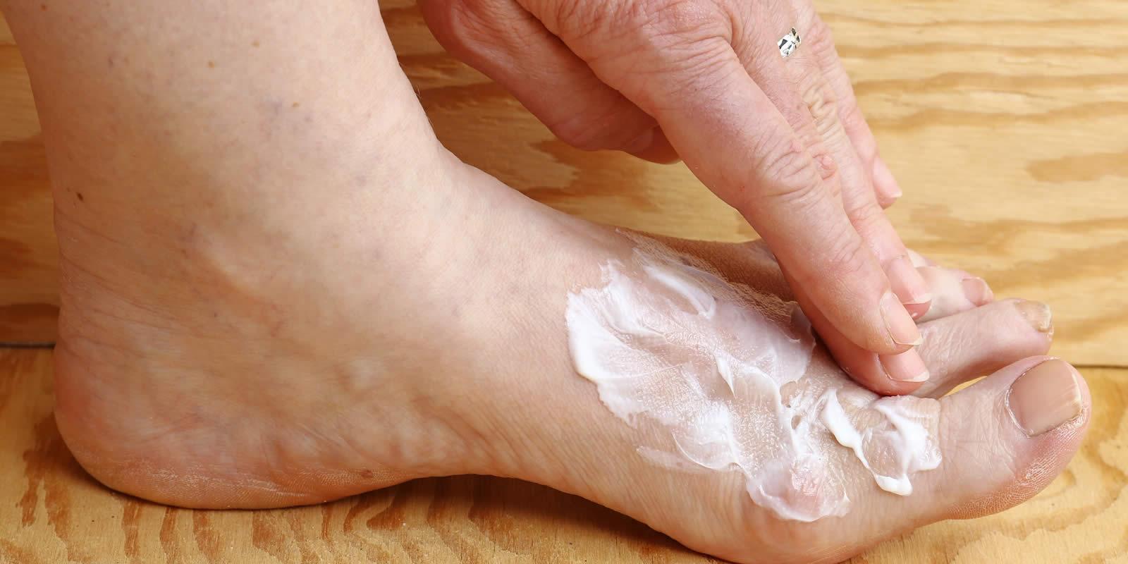 Fußpilz Symptome richtig erkennen